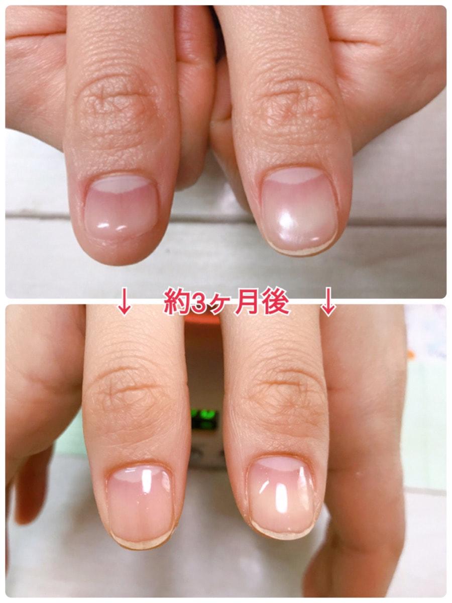 兵庫県三木市の深爪改善・深爪矯正